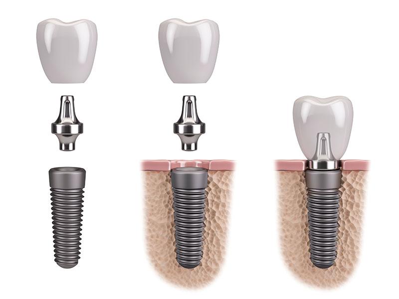 Implantes Dentales Procedimiento