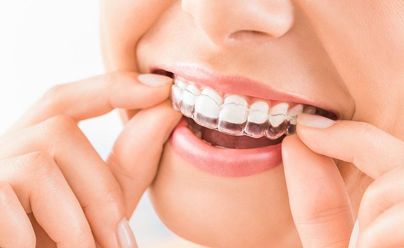 Qué es la Ortodoncia Invisalign